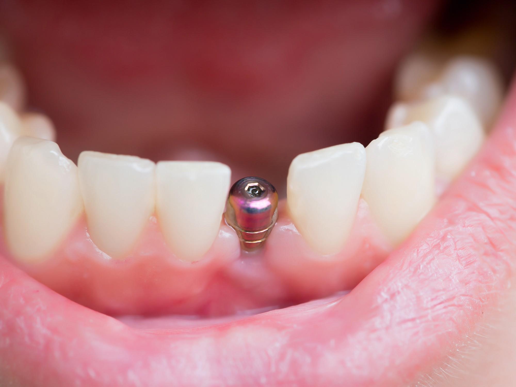 Implant dentaire : Pourquoi miser sur l'implant dentaire ?